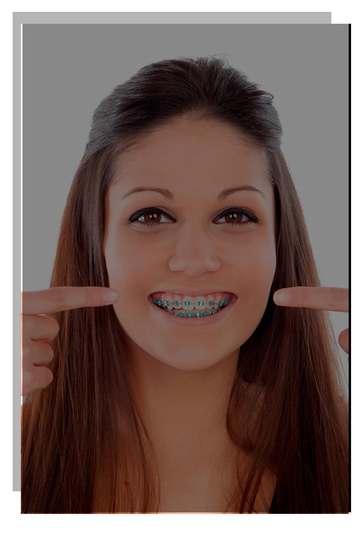 Centro Dental Smiling   tu Clínica Dental en Madrid